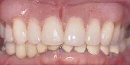 Closeup of smile with new top and bottom denture