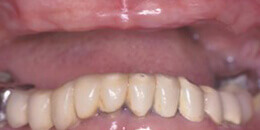 Closeup of missing top teeth and damaged bottom denture
