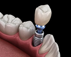 Illustration of crown being installed on a dental implant